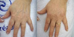 relleno hialuronico manos