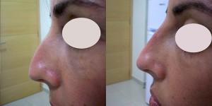 remodelación nariz