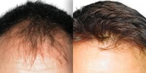 tratamiento capilar cabeza