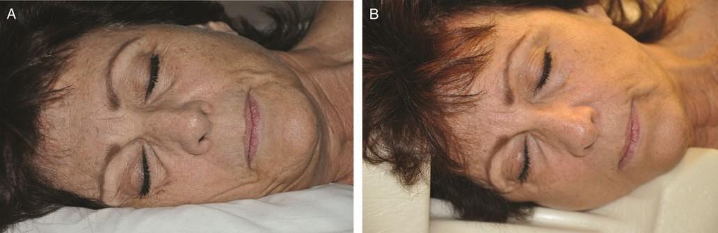 Diferencias de arrugas entre dormir sin almohada especial (izq.) y dormir con una almohada que minimice la compresión (dcha.)
