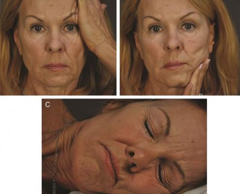 Recreación de la distorsión facial al dormir en una mujer de 65 años