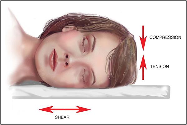 Arrugar por dormir de lado