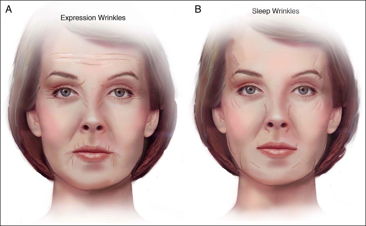 Diferencia entre las arrugas de expresión y las arrugas producidas por la posición al dormir